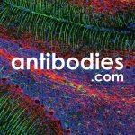 Antibodies.com Raises £400,000 Pre-Seed Round to Help Researchers Discover More For Less